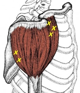 deltoid-side-trigger-points